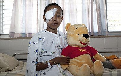 קבדה אימסק, לאחר הניתוח. תותאם לה עין מלאכותית (צילום: ורדי כהנא )