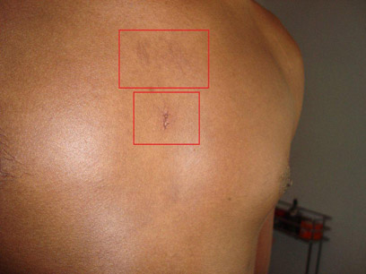 """""""נקלענו למקום הלא נכון"""". סימני התקיפה על גופו של בימרו (צילום: ג'ג'או בימרו)"""