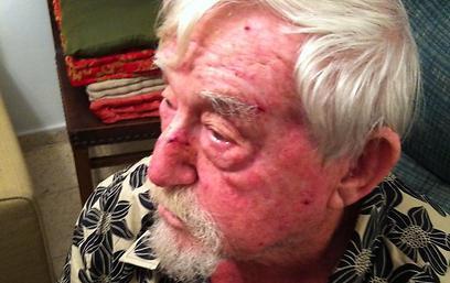 """""""לא הצלחתי להכות בחזרה"""". פייבל, אחרי ששוחרר מבית החולים (צילום: נילי לרנר)"""