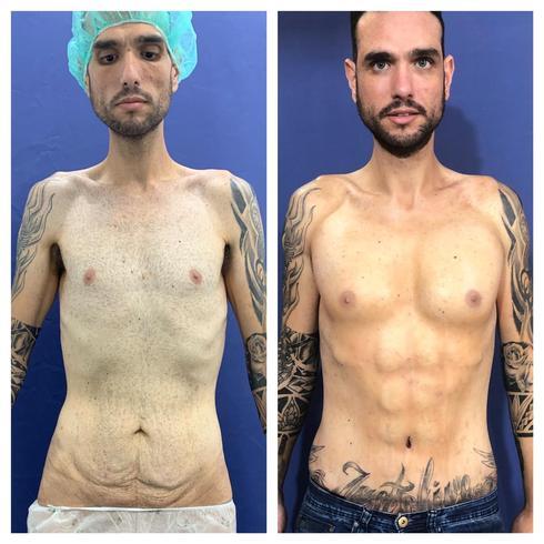 Хай после похудения (слева) и после добавления силиконовых кубиков (справа). Фото: Авраам Леви